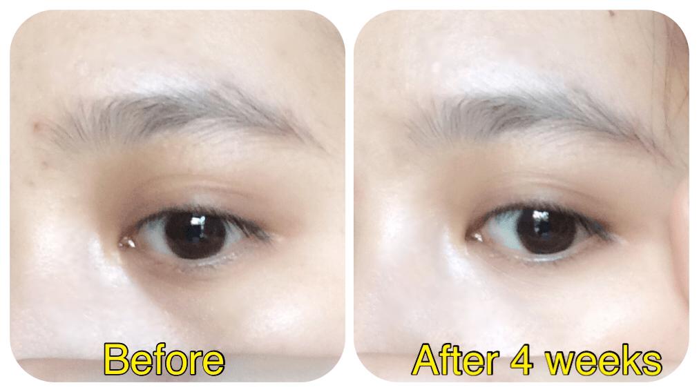 kem-duong-mat-meishoku-placenta-medicated-whitening-eye-cream-30g-cua-nhat-ban-11