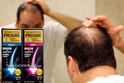 Thuốc mọc tóc Karoyan Progre giá bao nhiêu-3