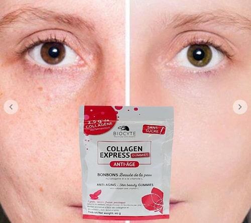 Kẹo Collagen Biocyte giá bao nhiêu-3