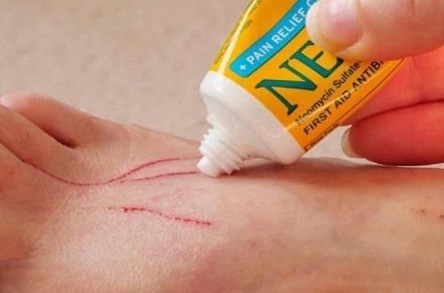 Cách sử dụng thuốc Neosporin trị sẹo bỏng hiệu quả-1
