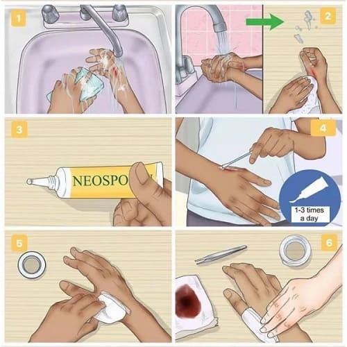 Cách sử dụng thuốc Neosporin trị sẹo bỏng hiệu quả-3